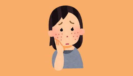 茶色いシミになるニキビ痕の消し方は?クレーターニキビ痕を治療で治すと費用はどれぐらい?