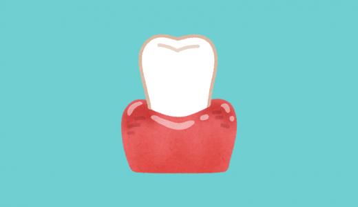 【歯周病】歯肉炎と歯周炎の違いは?口臭が出るのはどっち?