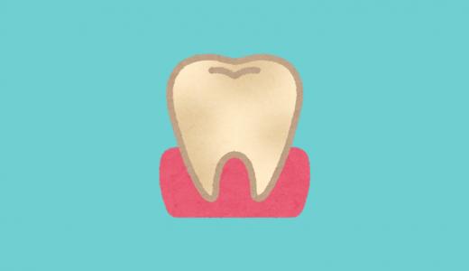 歯の黄ばみは口臭の原因?プラークはエナメル質表面に付着する!